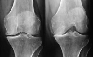 radiographie-gonarthrose-300x184